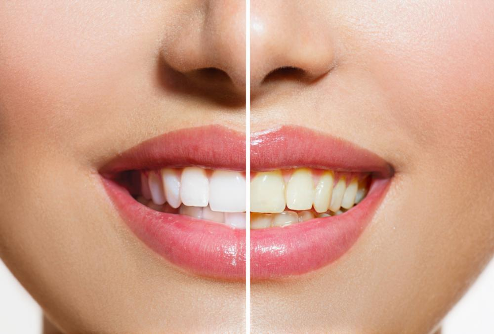 a before and after image from cosmetic dentistry | Jonesboro AR cosmetic dentist