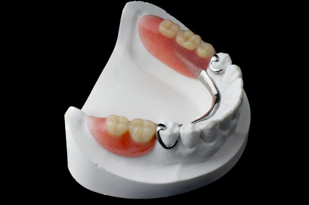 A set of partial dentures on a mold | Jonesboro AR dentures