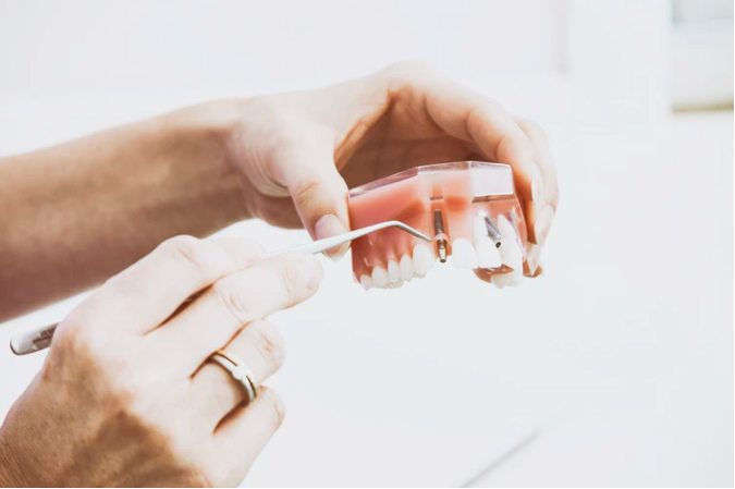 hand displaying what a dental implant looks like in a jaw