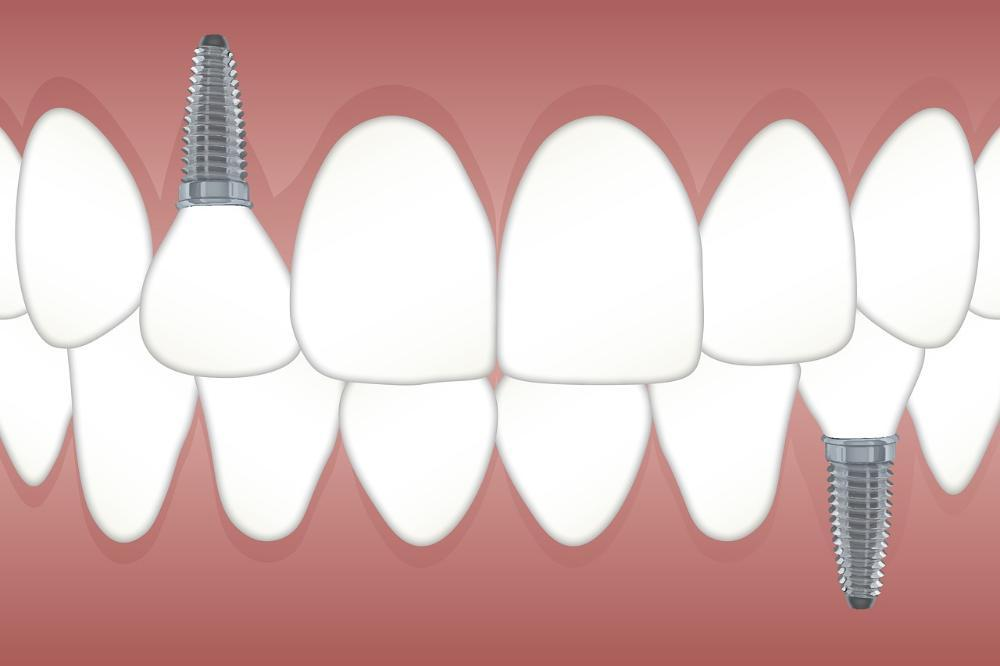 image of dental implants in a mouth