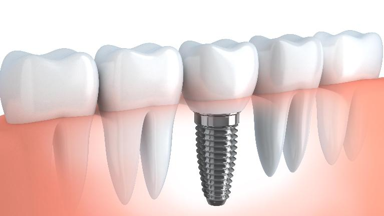Dental Implants Jonesboro AR