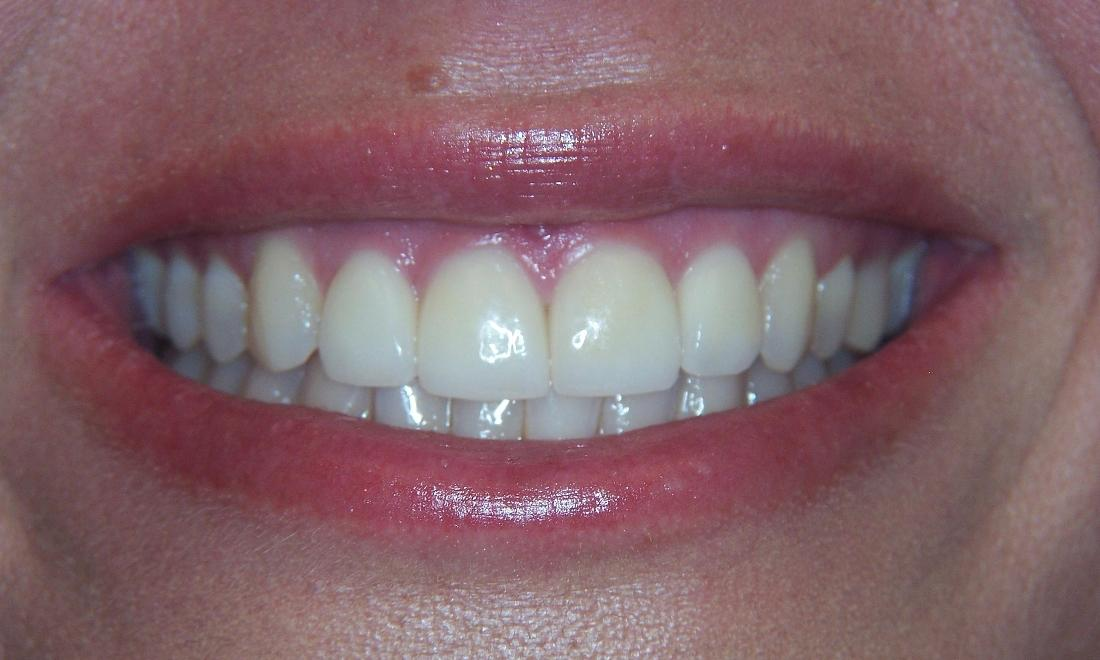 After Invisalign | Dental Solutions | Jonesboro, AR