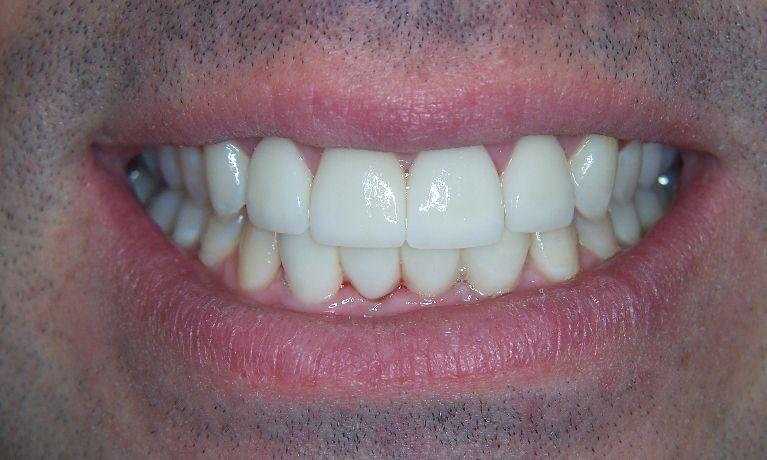 Repaired teeth with veneers & crowns | Dental Solutions | Jonesboro, AR
