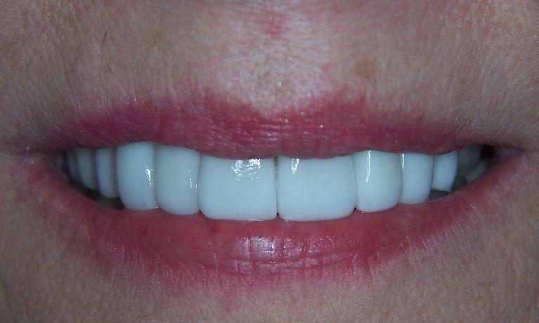 Rejuvenate your smile with Cosmetic dentistry