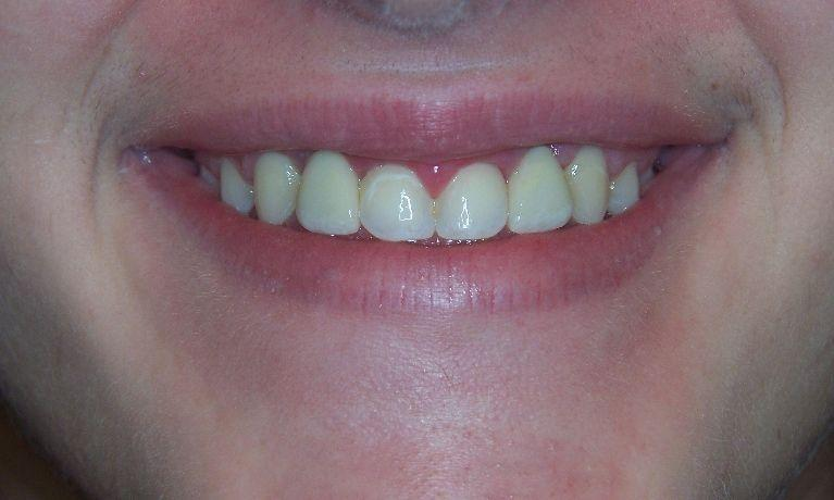 Replace missing teeth permanently with dental implants