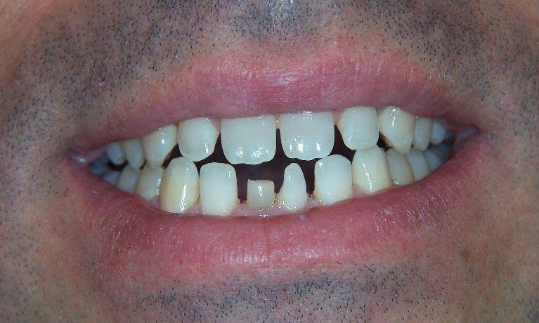 Broken teeth with gaps before | Dental Solutions | Jonesboro, AR