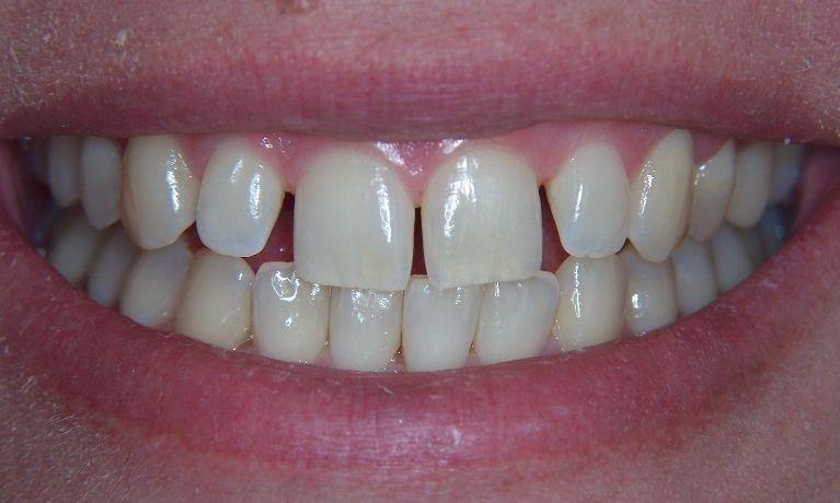 teeth with gap spacing