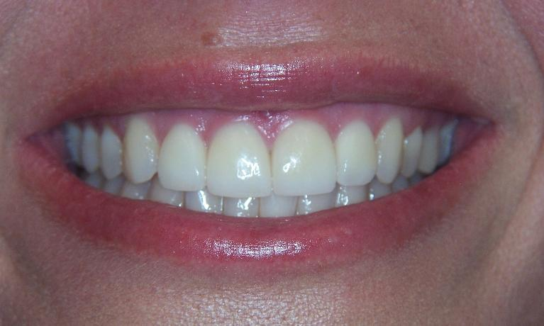 Invisalign-success-story-After-Image