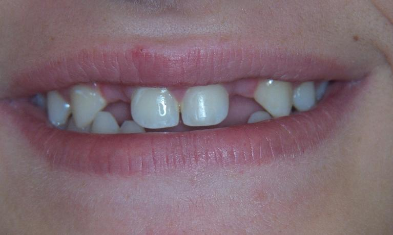 Replace-missing-teeth-permanently-with-dental-implants-Before-Image
