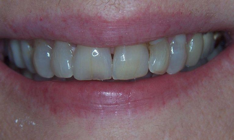 Rejuvenate-your-smile-with-Cosmetic-dentistry-Before-Image
